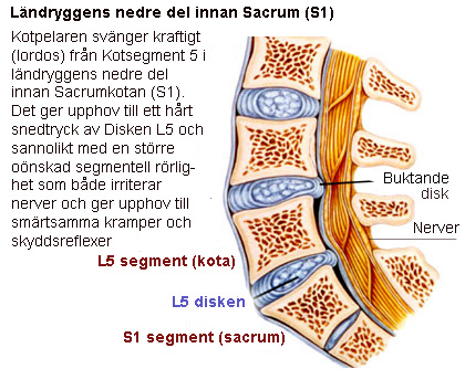 Segmentrelaterad ryggont