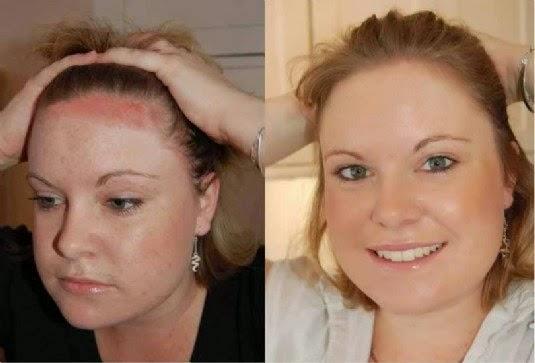 El tratamiento de la eccema alérgica de la piel