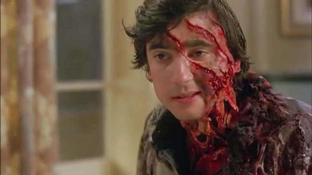 Griffin Dunne in An American Werewolf in London