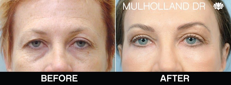 Before and after photos of a blepharoplasty patient
