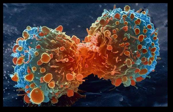 Cum evit cancerul?
