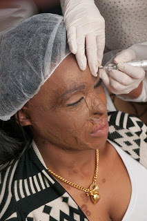 Nigerian acid attack victim Naomi Oni has eyebrows restored