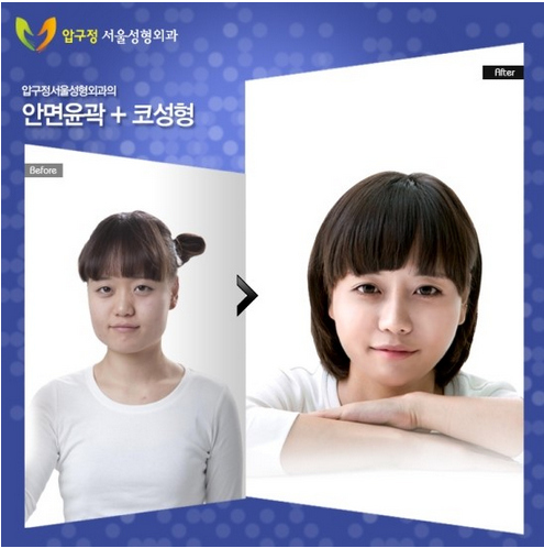 cosmetic plastic  Surgery results