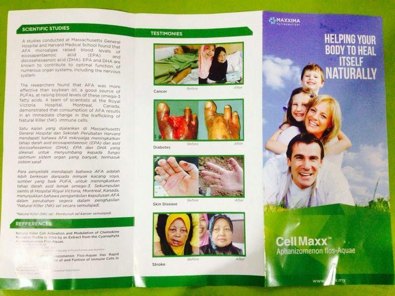 flier cellmaxx, harga cellmaxx,hidupkan semula tulang sum-sum,kos rawatan, neautral killer, stem cell induk,muda,jelita , anggun dengan stem cell induk, jelita bersama cellmaxx