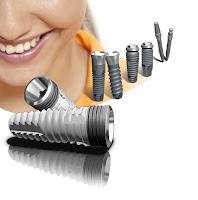 mejor implante dental