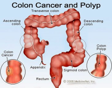 colon cancer - kolon kanseri