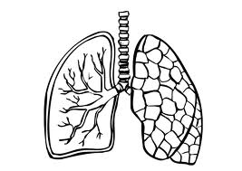 Neoplasias de pulmón y pleura