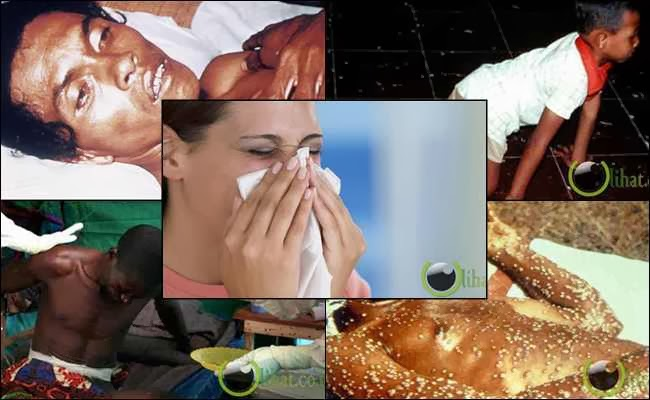10 Jenis Penyakit yang paling Parah di Dunia