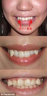 Gigi Taring ( Yaeba ) Menjadi Trend Di Jepang ! [ www.BlogApaAja.com ]