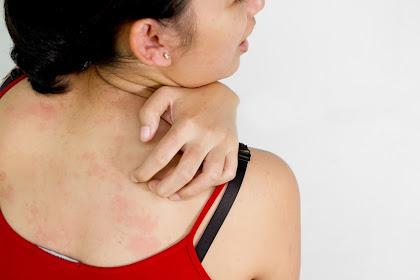 Istri Ini Alergi Terhadap Ciuman Suami