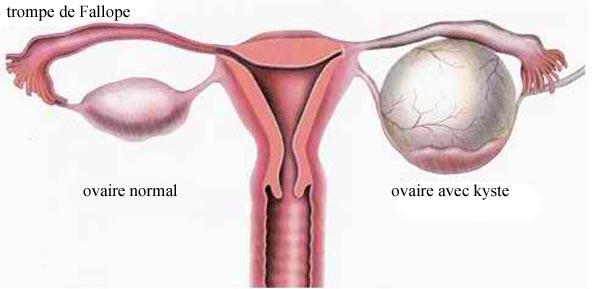 ou se situe exactement les ovaires