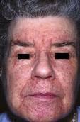 masalah kulit eczema, masalah iritasi kuit, kegatalan kulit, kulit berbintik merah dan gatal