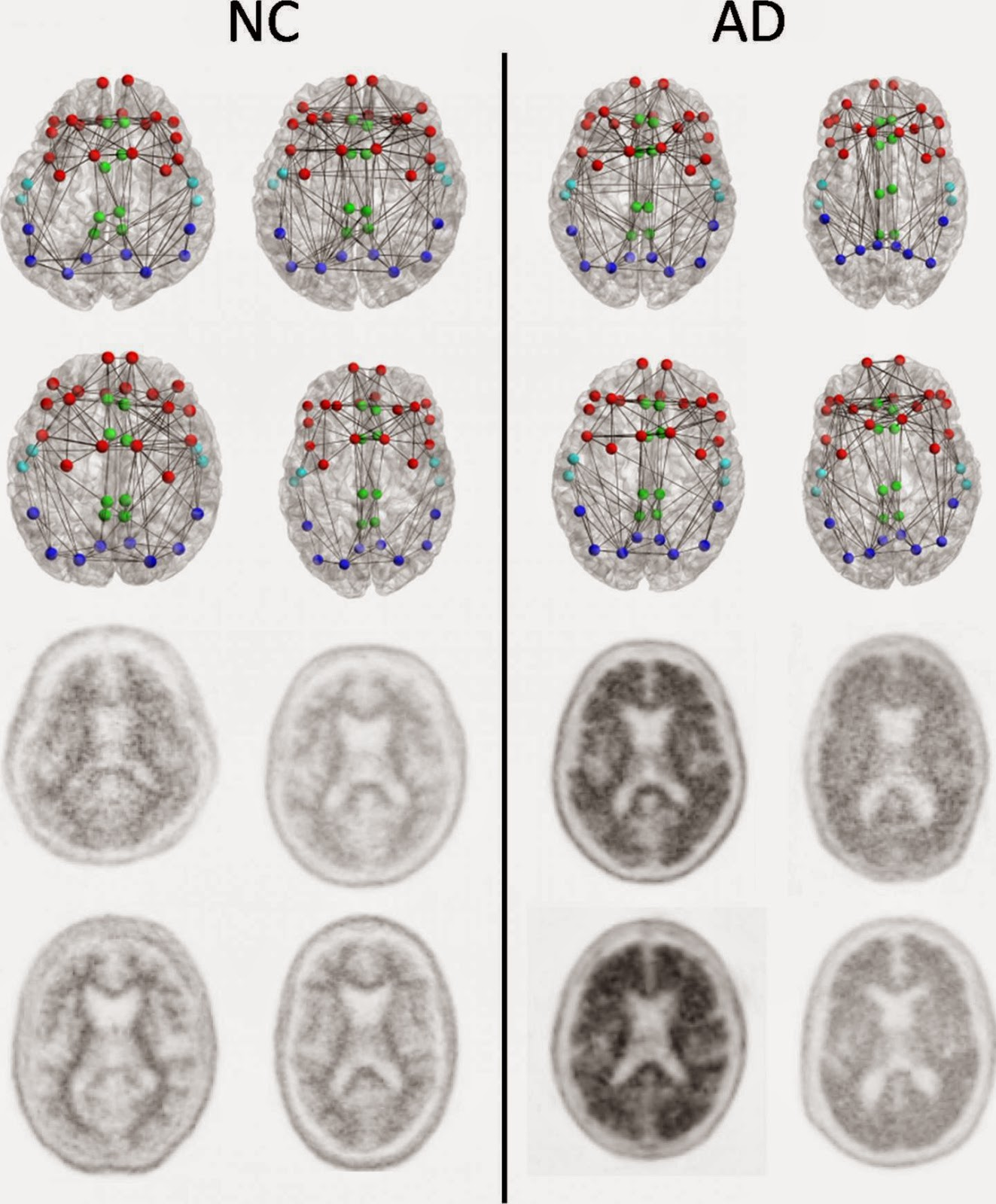 Brain Connections Breaking Down  in Early Alzheimer's