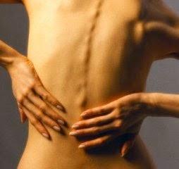 dolor lumbar