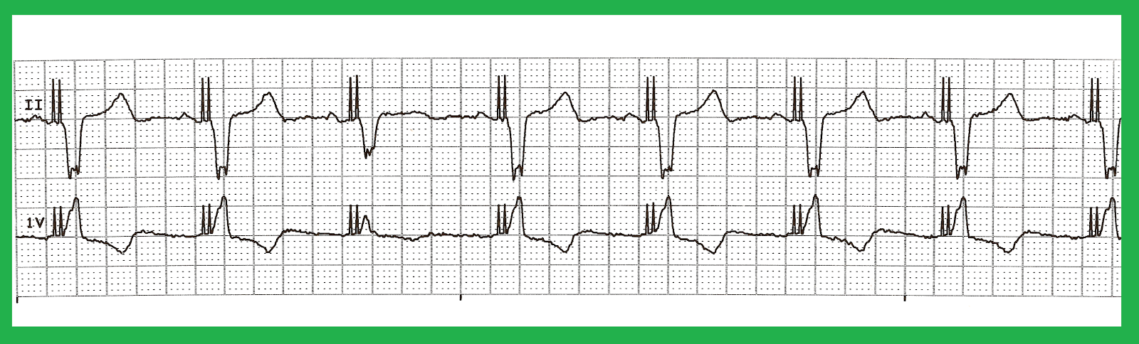 Float Nurse: EKG Rhythm Quiz 272