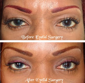 ETHNIC BLEPHAROPLASTY (EYELID) SURGERY JOURNEY