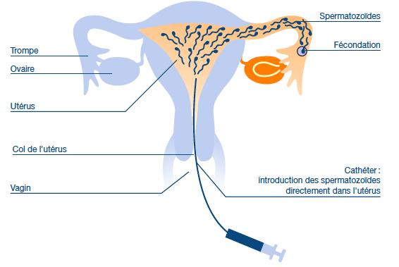 Femme célibataire insémination artificielle belgique