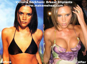 The Victoria Beckham Breast Implant Cup Game?