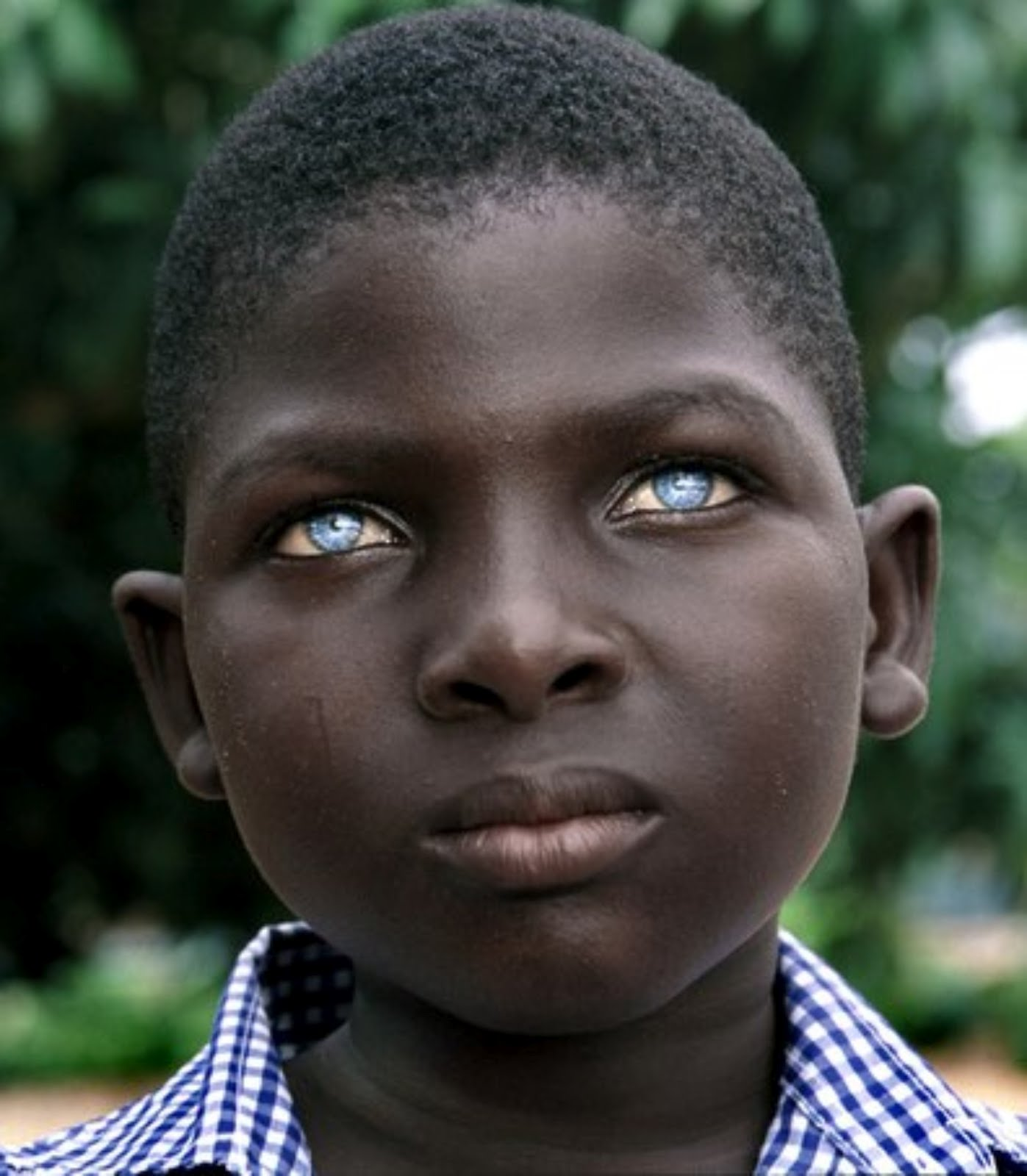 African Black People with Blue Eyes