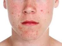Línea de la mandíbula causa el acné en adultos y sobre todo en las mujeres se debe a problemas hormonales y la falta de actividad hormonal.