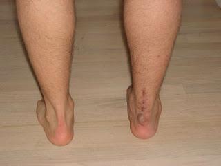 Cara menghilangkan bekas luka knalpot