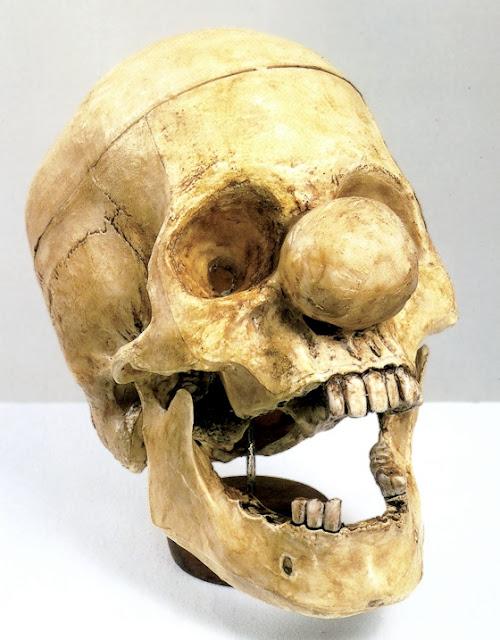 Vik Muniz: Klovnens kranium