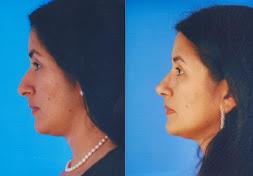 Cirugia estetica de nariz