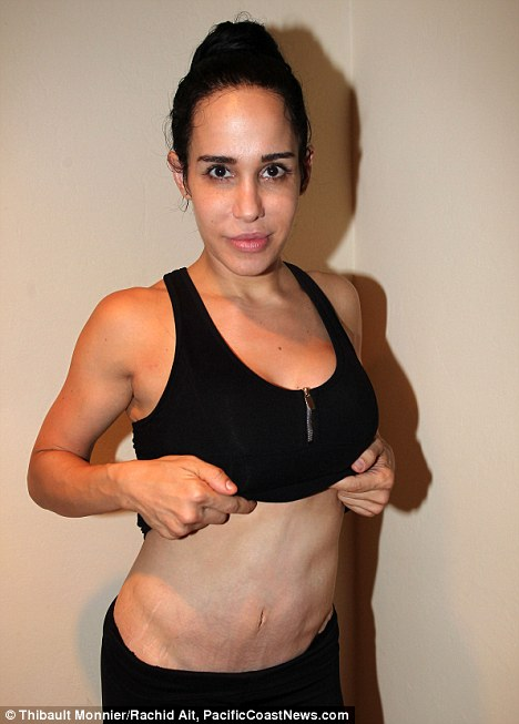 Bellyitch Nadya Suleman Reveals Pregnancy Scars