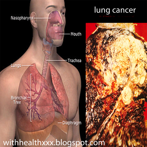 what does stage 4 cancer mean on the lungs