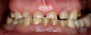 sensibilidad por desgaste de dientes bruxismo