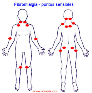 Fibromialgia - puntos sensibles