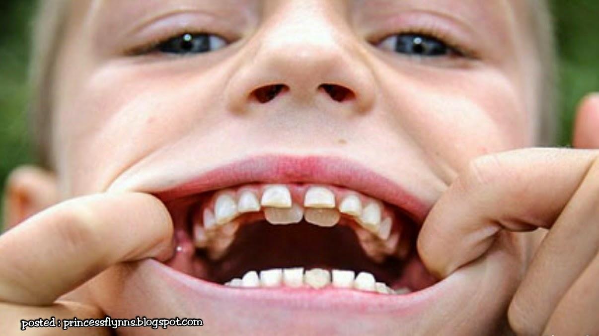 Ранние постоянные зубы у детей