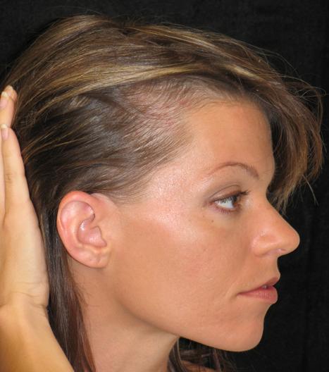 При диффузном выпадении волос у женщин как лечить