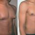 Como eliminar la ginecomastia de forma natural