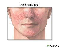 Nursing Care Plan for Acne