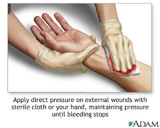 how to stop bleeding from deep cut on thumb