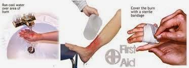 http://penjualanobatherbalalami.blogspot.com/2014/04/kisah-sembuh-dari-penyakit-luka-bakar.html