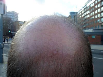 Bald Spot 4