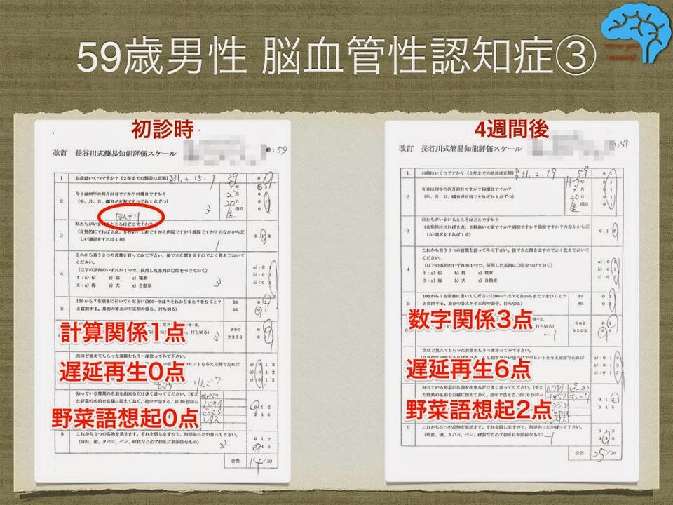 レミニールで長谷川式テストは11点上昇