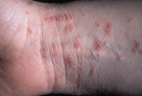 Scabies Mite On Skin