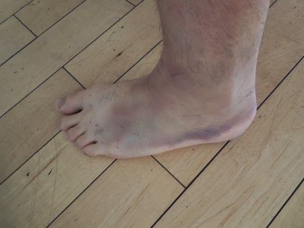 Sprained ankle one week later