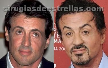 Sylvester Stallone antes y después