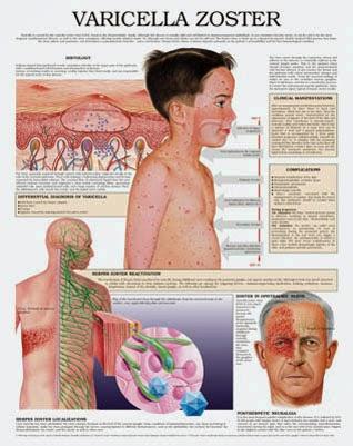 obat penyakit cacar air pada orang dewasa