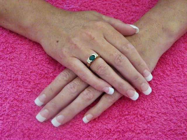 Classic French White Nails - Acrylic Nail Art Design