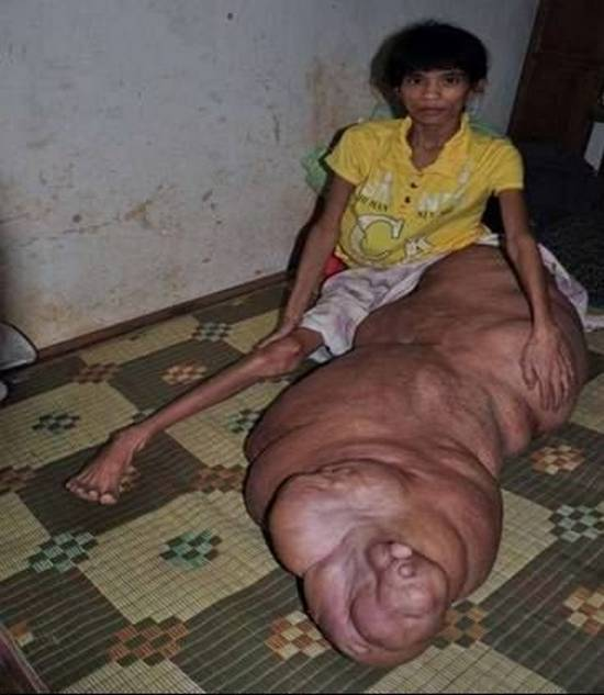 Pics of the worlds biggest penis