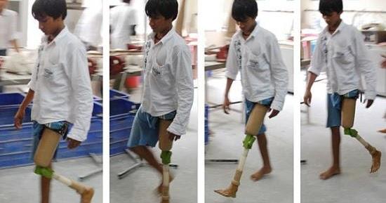 Quanto costa un ginocchio artificiale quanto costa for Realizzazione laghetti artificiali quanto costa
