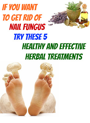 cure fungus with 5 herbs