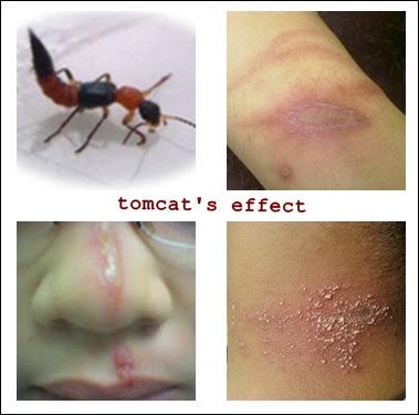 Efek jika terkena serangga Tomcat