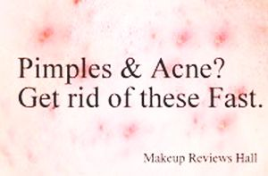 Best way to remove acne & pimples
