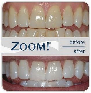 Anniswulansari Cara Memutihkan Gigi Secara Alami